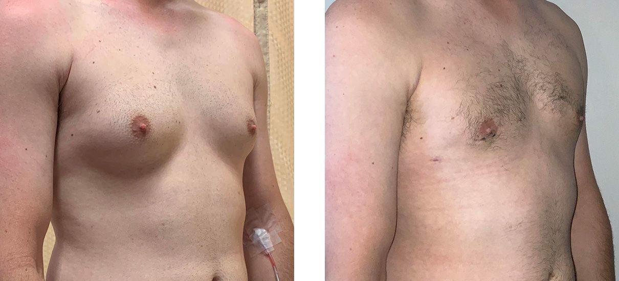 Cosmetic Surgery Tulsa | Gynecomastia - Patient 1 - Oblique 1