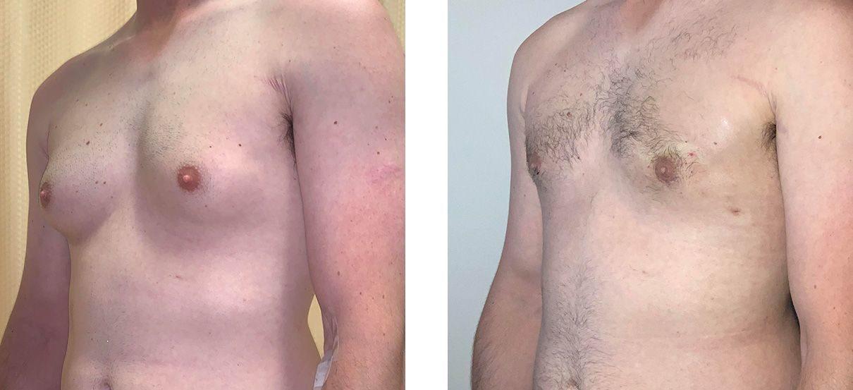 Cosmetic Surgery Tulsa | Gynecomastia - Patient 1 - Oblique 2