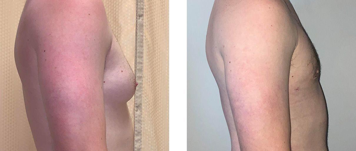 Cosmetic Surgery Tulsa | Gynecomastia - Patient 1 - Side 1