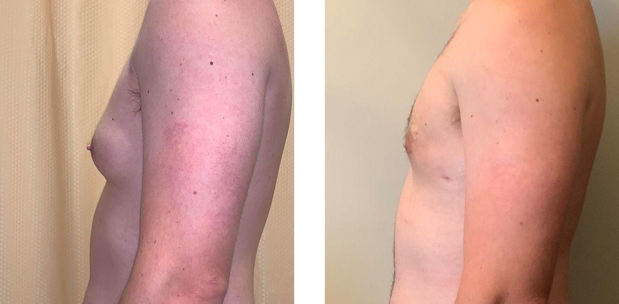 Cosmetic Surgery Tulsa | Gynecomastia - Patient 1 - Side 2