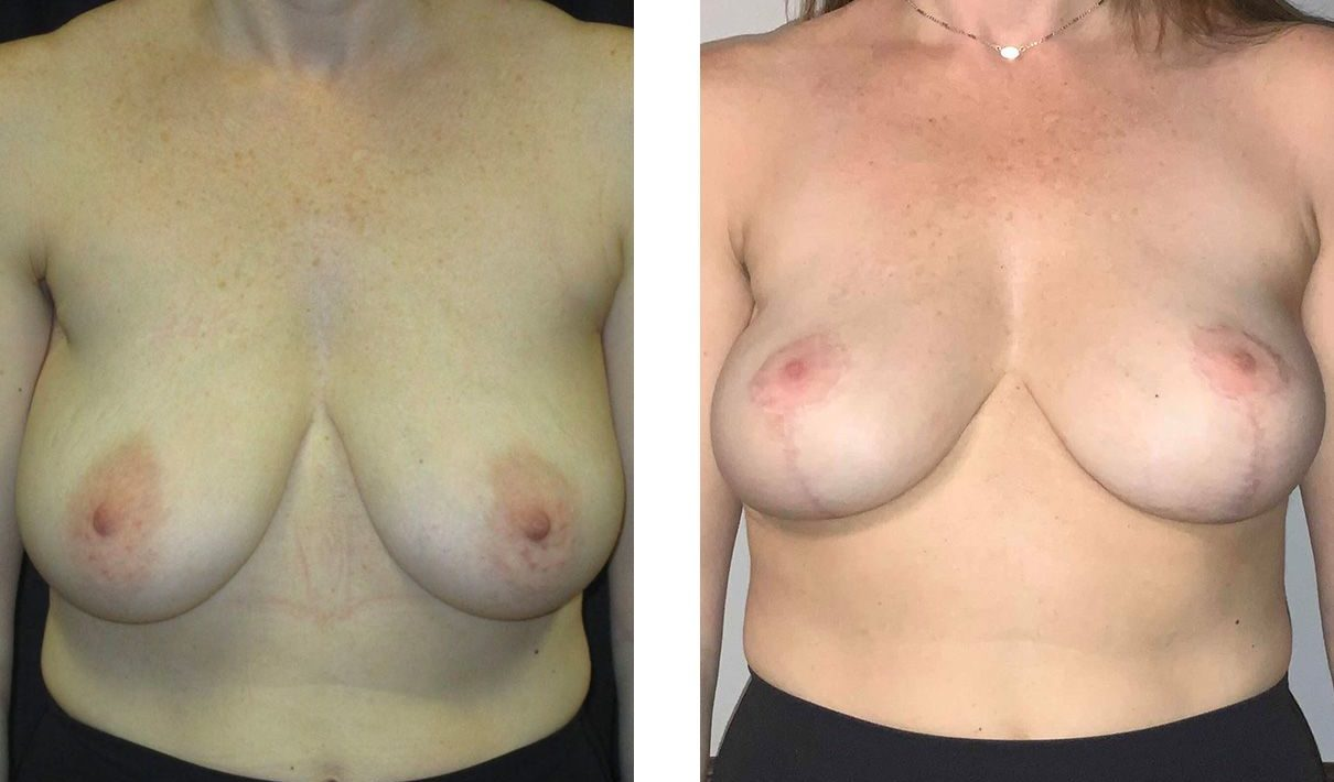 Cosmetic Surgery Tulsa | Breast Lift - Patient 7 - Front