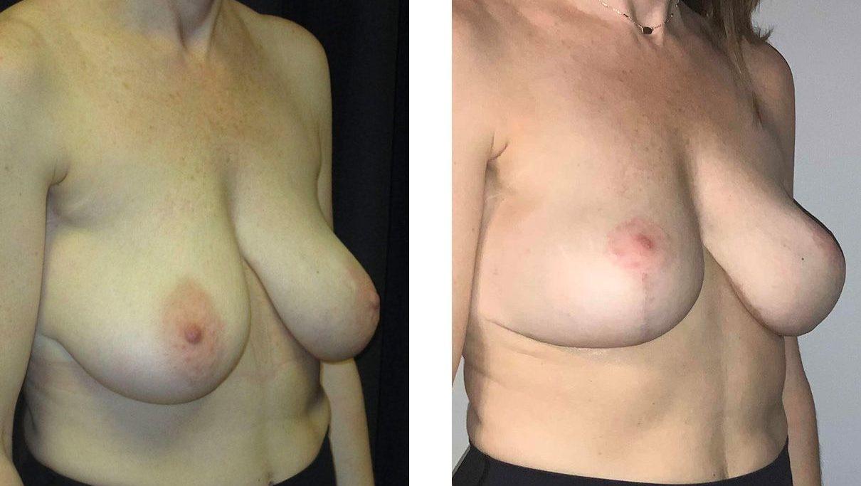 Cosmetic Surgery Tulsa | Breast Lift - Patient 7 - Oblique 1