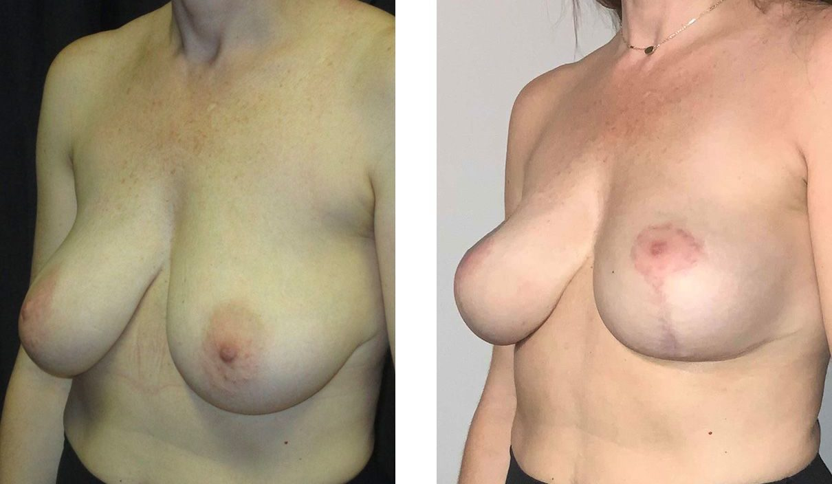 Cosmetic Surgery Tulsa | Breast Lift - Patient 7 - Oblique 2