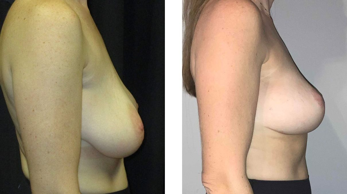 Cosmetic Surgery Tulsa | Breast Lift - Patient 7 - Side 1