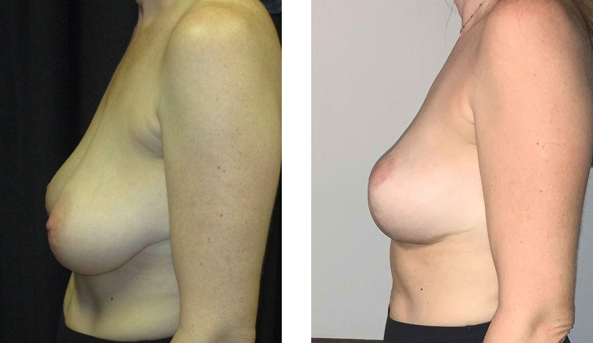 Cosmetic Surgery Tulsa | Breast Lift - Patient 7 - Side 2