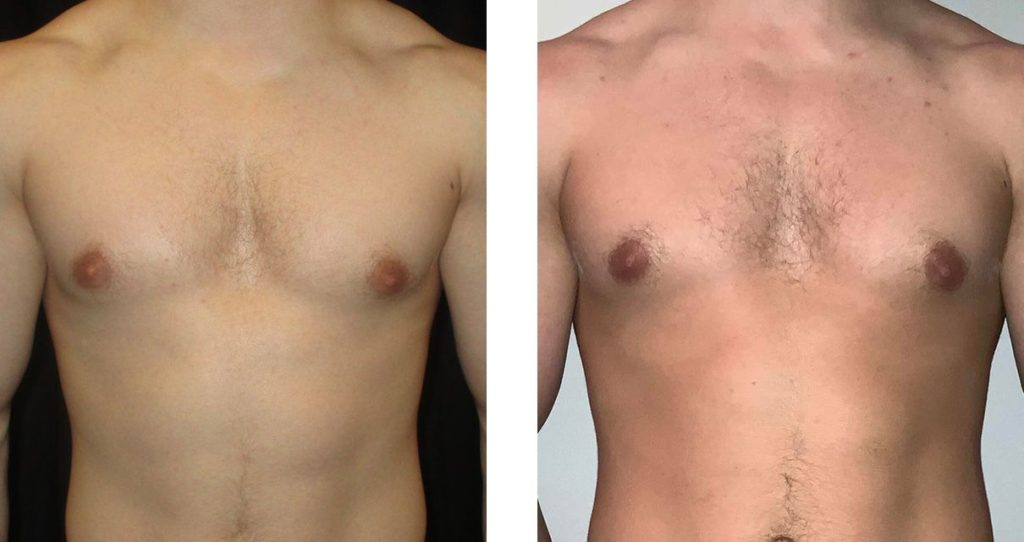 Cosmetic Surgery Tulsa | Gynecomastia - Patient 2 - Front
