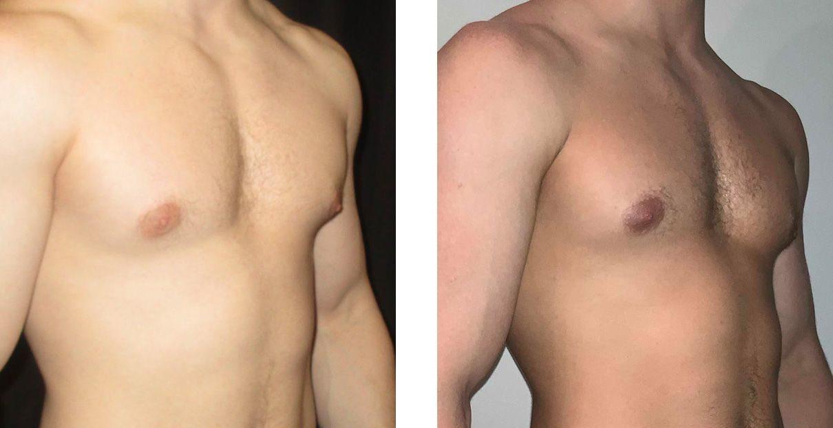 Cosmetic Surgery Tulsa | Gynecomastia - Patient 2 - Oblique 1