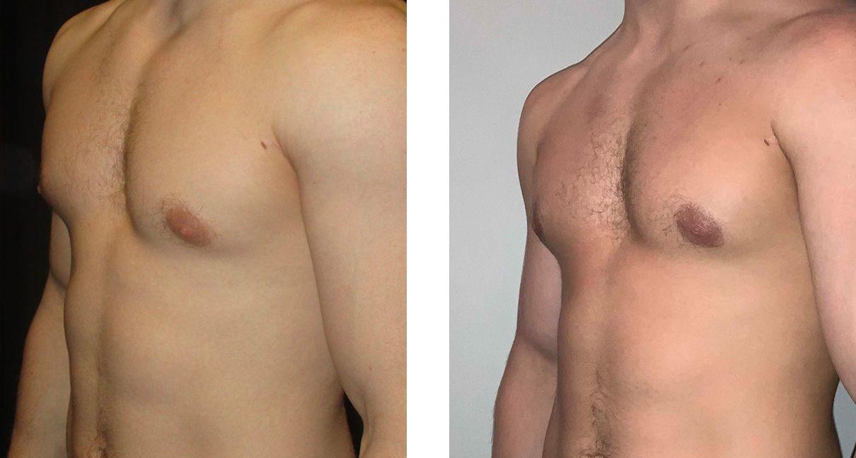 Cosmetic Surgery Tulsa | Gynecomastia - Patient 2 - Oblique 2