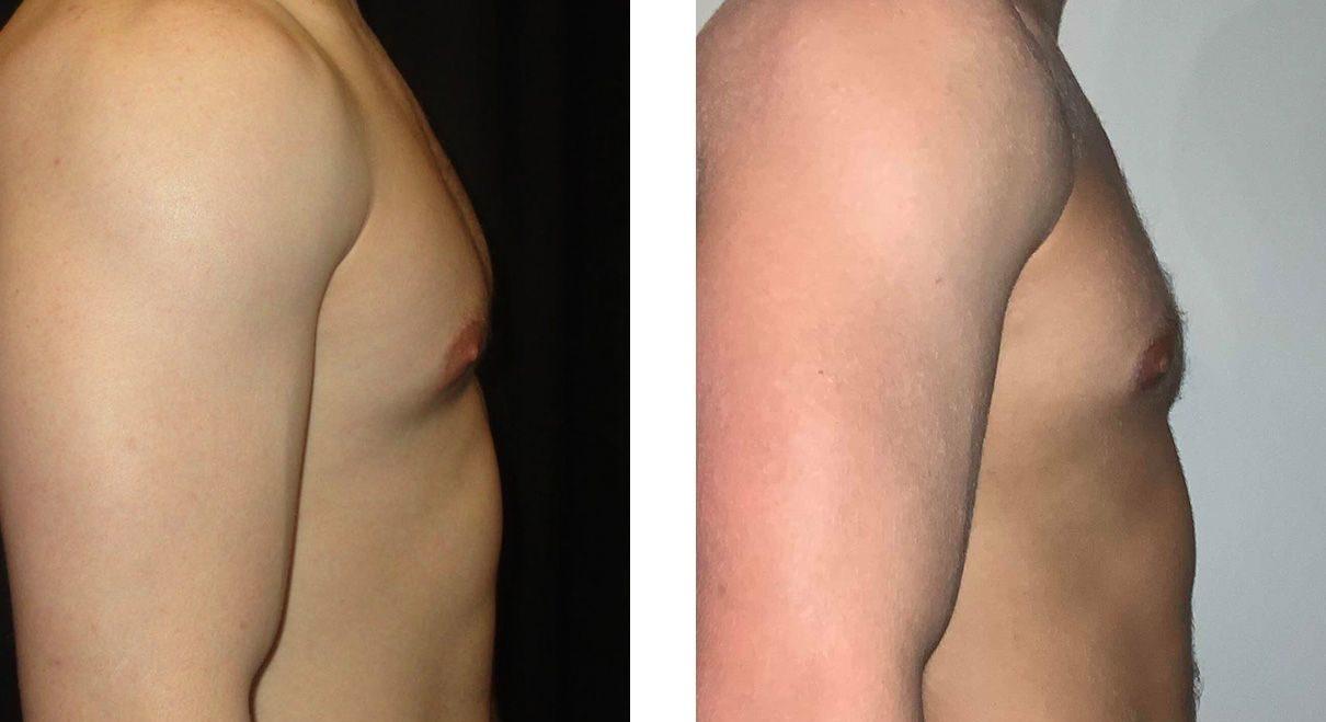 Cosmetic Surgery Tulsa | Gynecomastia - Patient 2 - Side 1