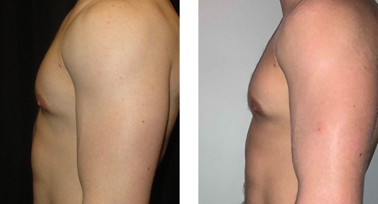 Cosmetic Surgery Tulsa | Gynecomastia - Patient 2 - Side 2