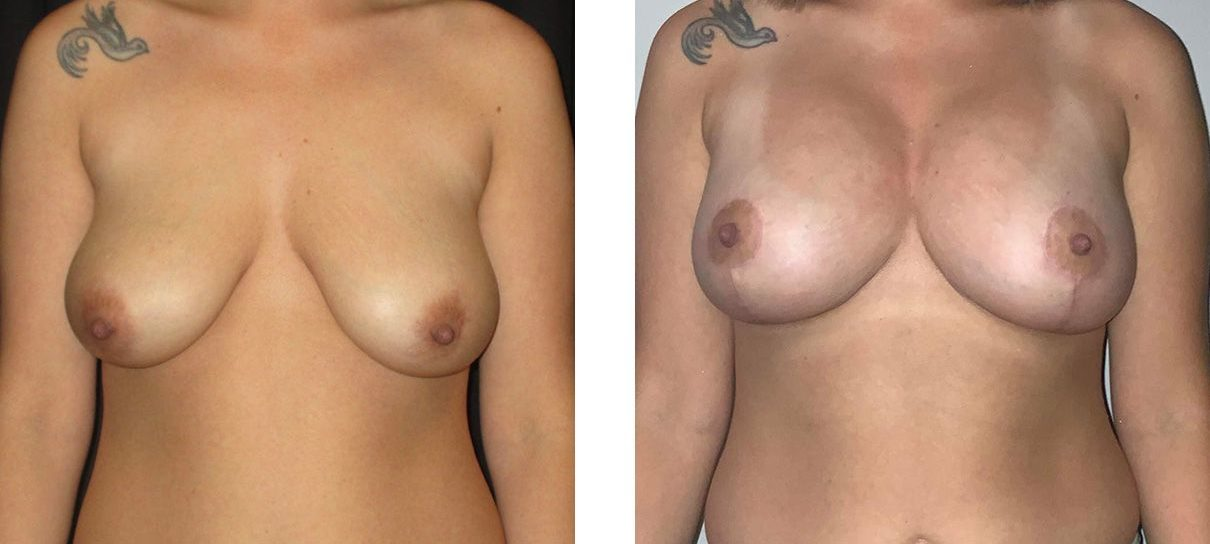 Cosmetic Surgery Tulsa | Breast Lift - Patient 8 - Front
