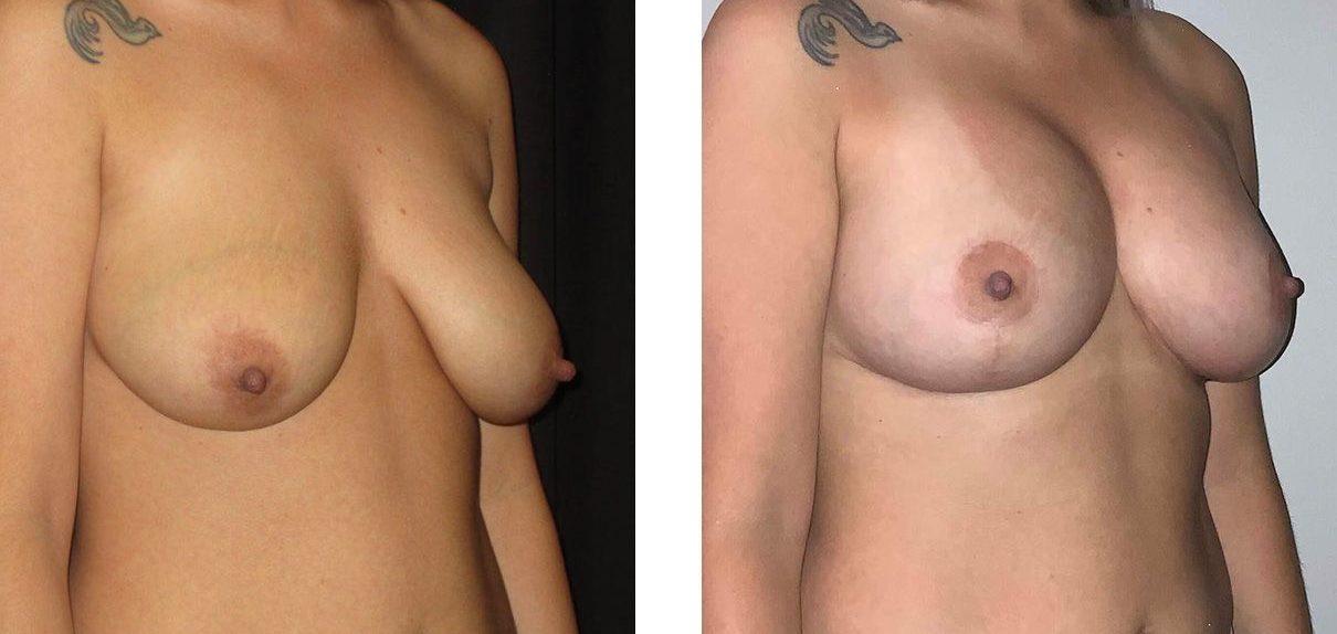 Cosmetic Surgery Tulsa | Breast Lift - Patient 8 - Oblique 1