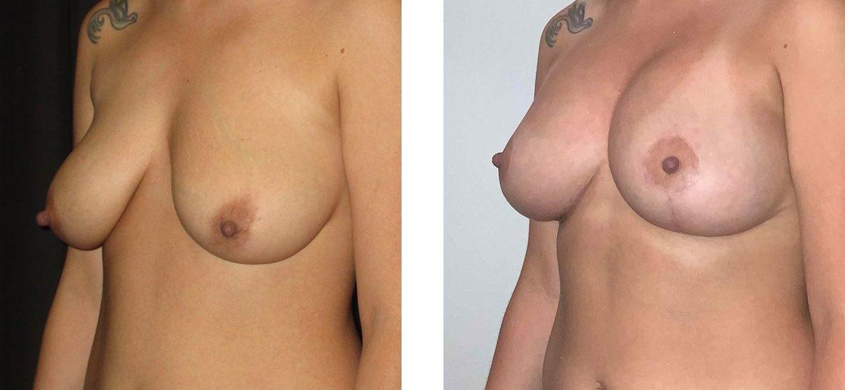 Cosmetic Surgery Tulsa | Breast Lift - Patient 8 - Oblique 2