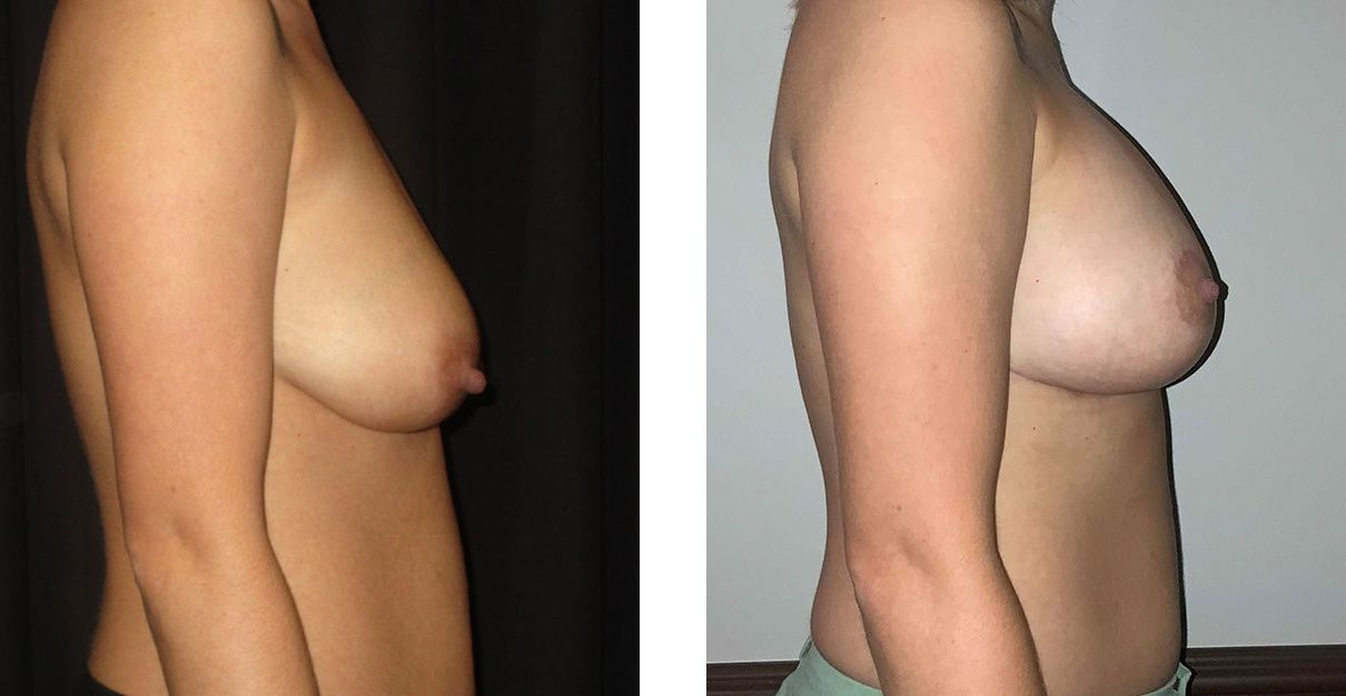 Cosmetic Surgery Tulsa | Breast Lift - Patient 8 - Side 1