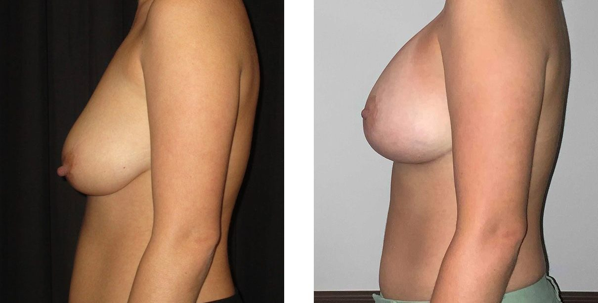 Cosmetic Surgery Tulsa | Breast Lift - Patient 8 - Side 2