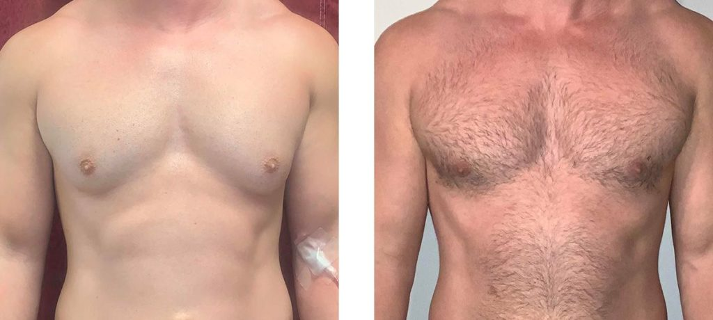 Cosmetic Surgery Tulsa | Gynecomastia - Patient 3 - Front