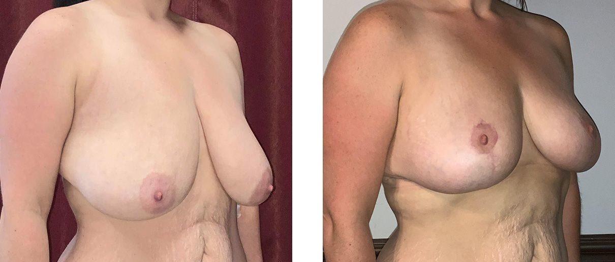 Cosmetic Surgery Tulsa   Breast Lift - Patient 9 - Oblique 1