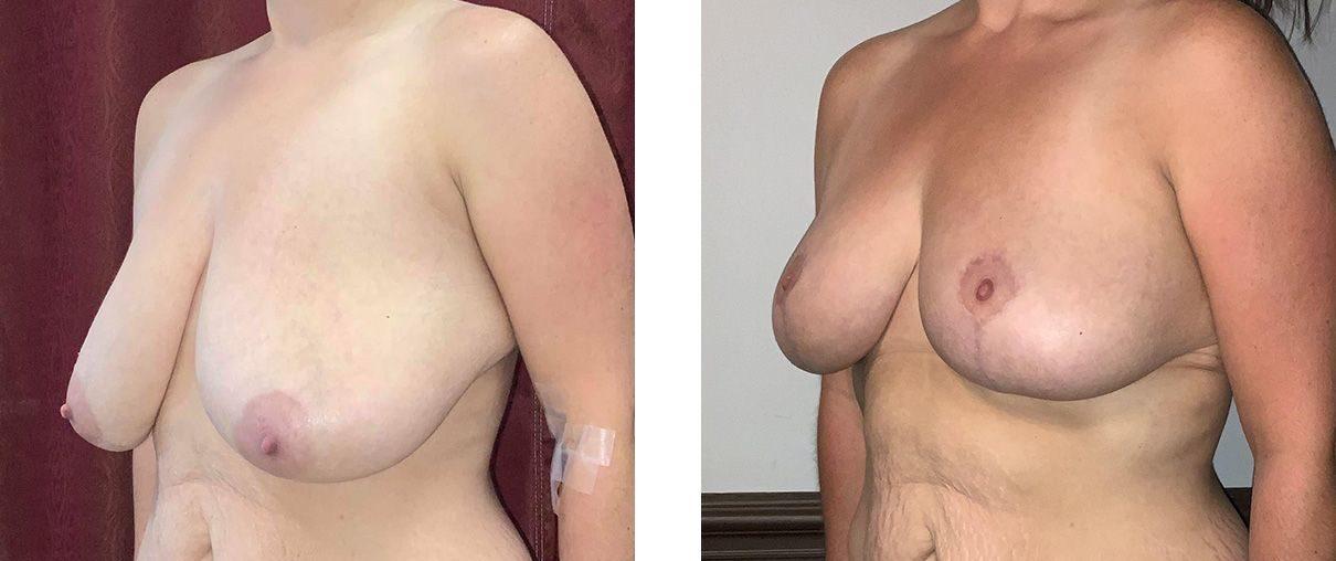 Cosmetic Surgery Tulsa   Breast Lift - Patient 9 - Oblique 2