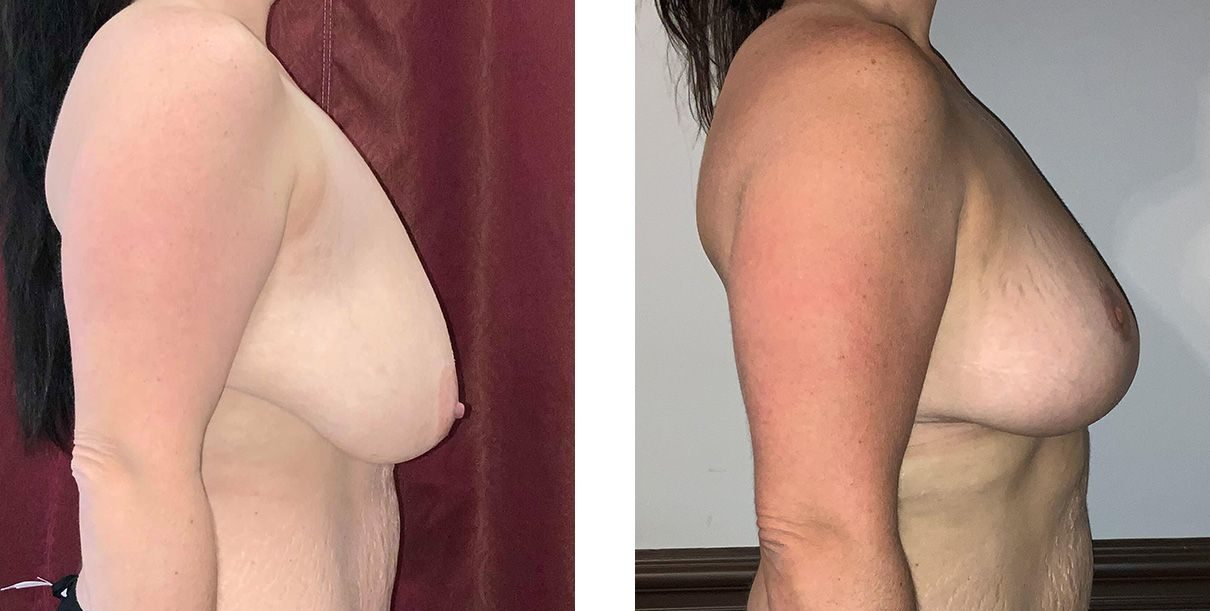 Cosmetic Surgery Tulsa | Breast Lift - Patient 9 - Side 1