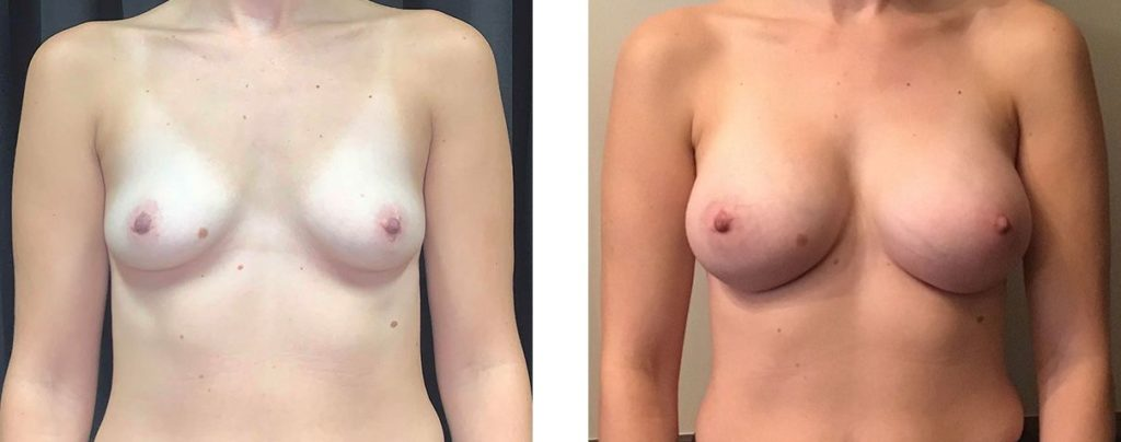 Cosmetic Surgery Tulsa | Breast Augmentation - Patient 2 - Front