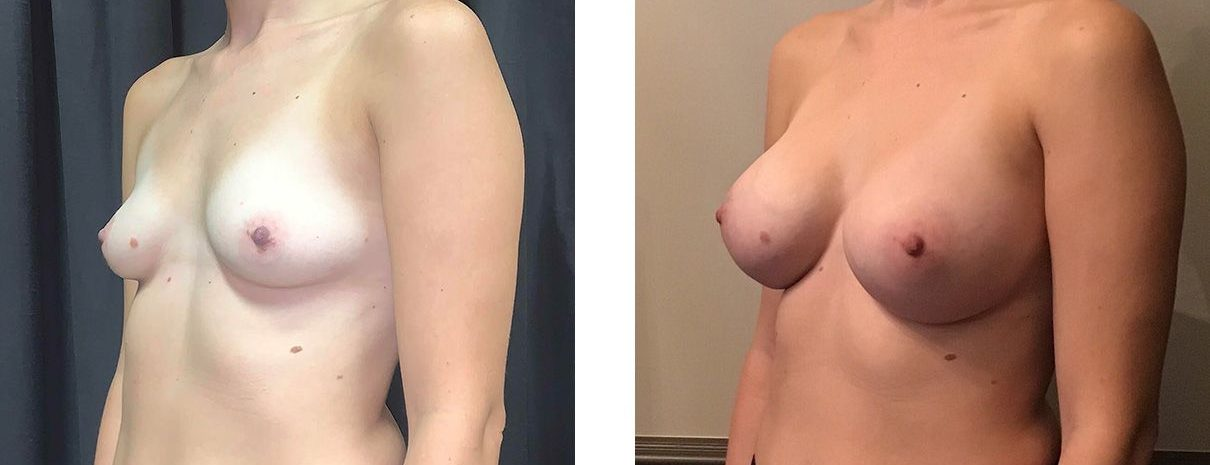 Cosmetic Surgery Tulsa | Breast Augmentation - Patient 2  - Oblique 2