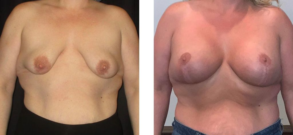 Cosmetic Surgery Tulsa | Breast Lift - Patient 10 - Front