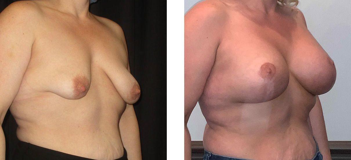 Cosmetic Surgery Tulsa | Breast Lift - Patient 10 - Oblique 1