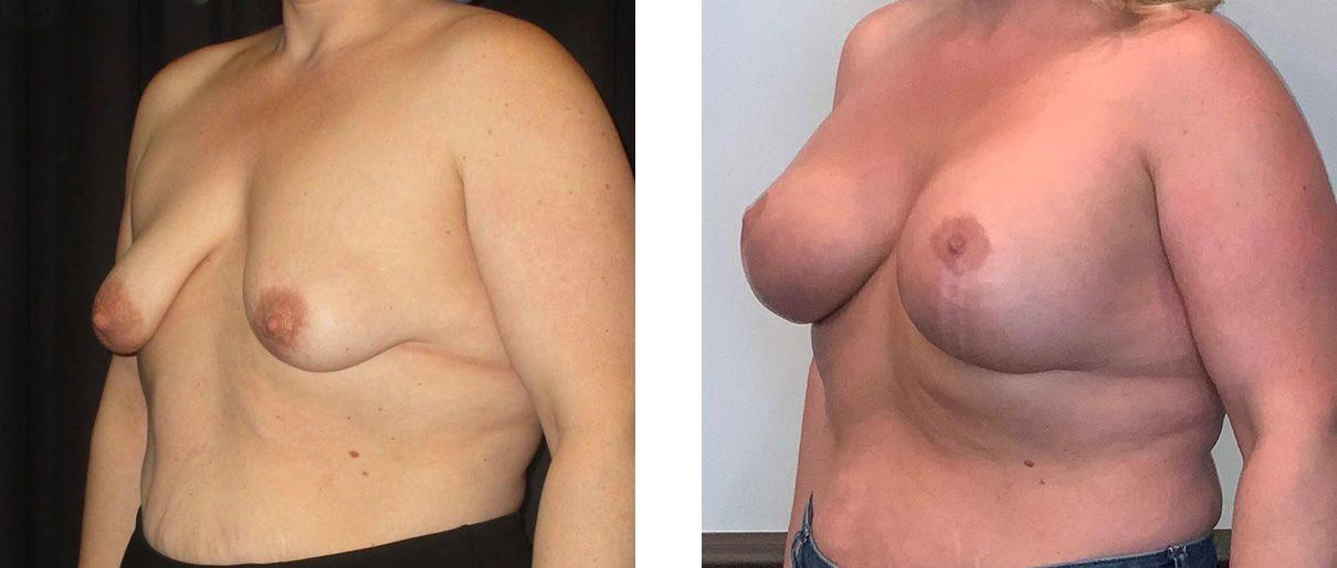 Cosmetic Surgery Tulsa | Breast Lift - Patient 10 - Oblique 2