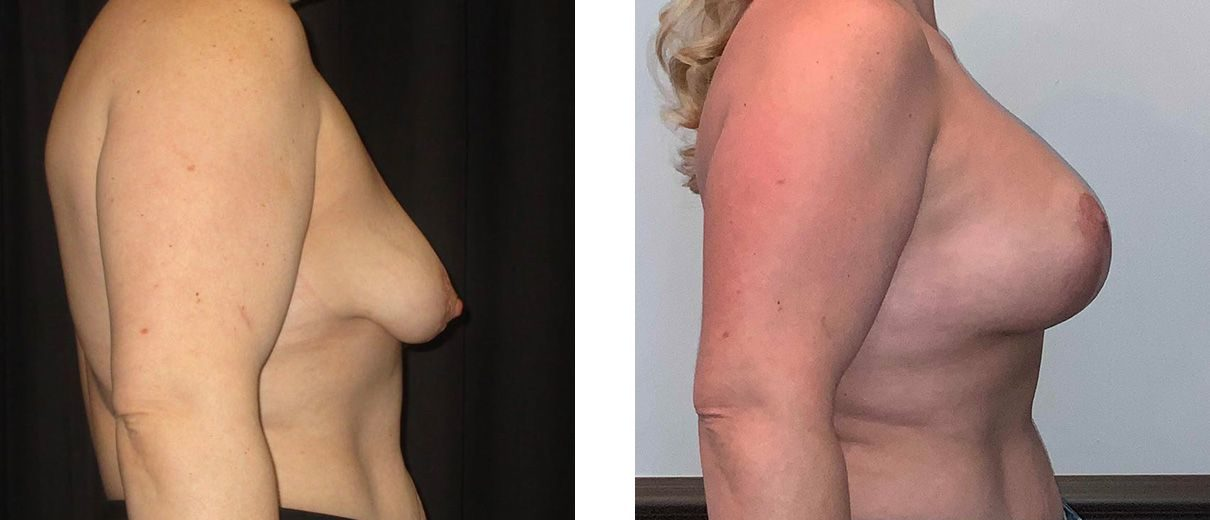Cosmetic Surgery Tulsa | Breast Lift - Patient 10 - Side 1