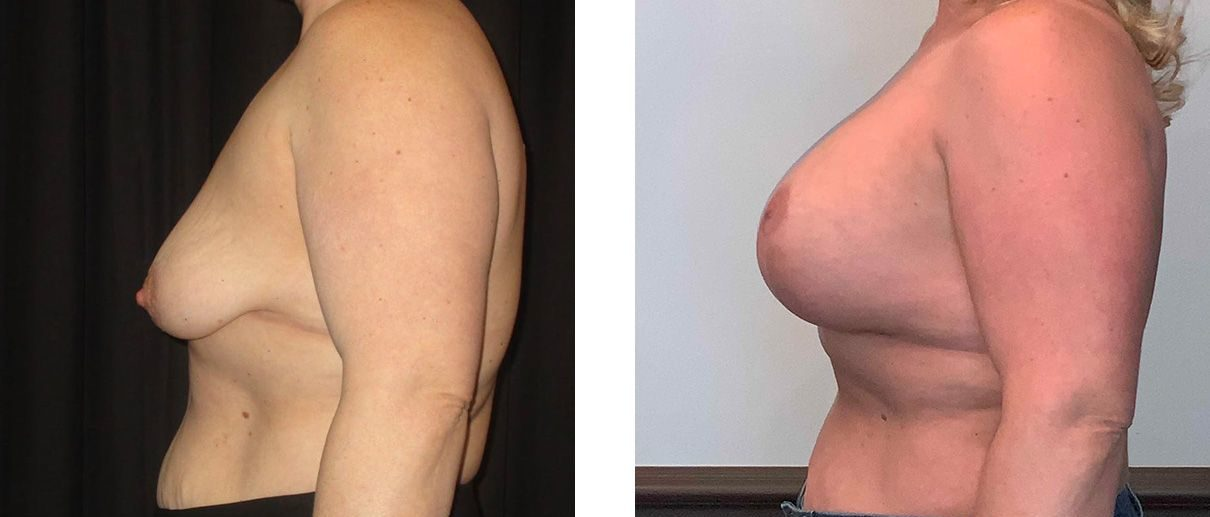 Cosmetic Surgery Tulsa | Breast Lift - Patient 10 - Side 2