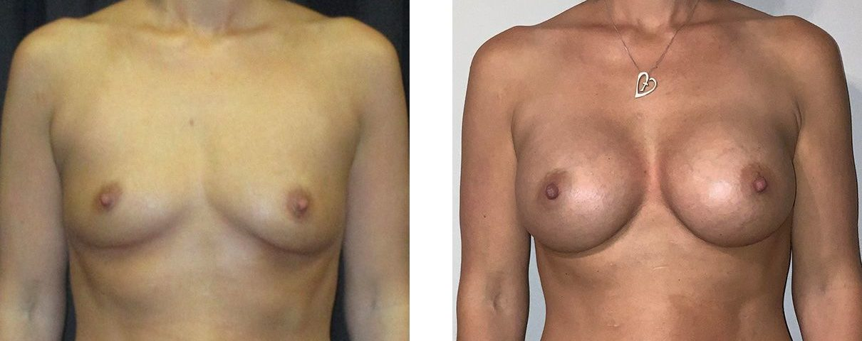 Cosmetic Surgery Tulsa | Breast Augmentation - Patient 3 - Front