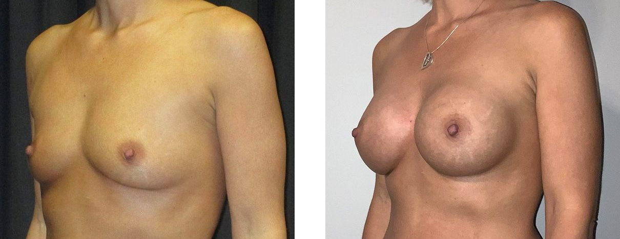 Cosmetic Surgery Tulsa | Breast Augmentation - Patient 3 - Oblique 2