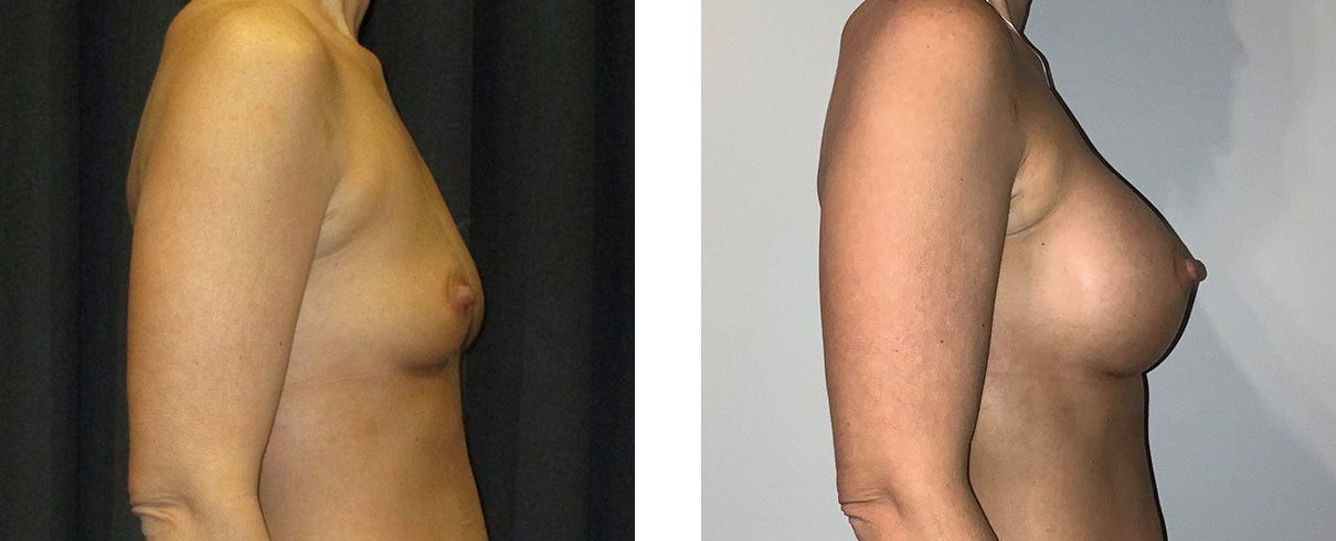 Cosmetic Surgery Tulsa | Breast Augmentation - Patient 3 - Side 1