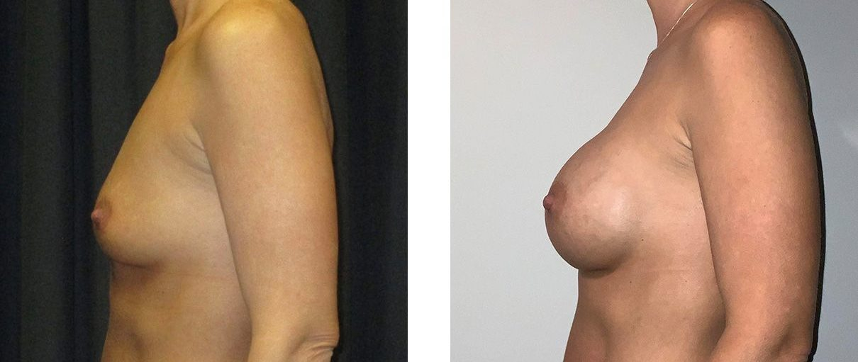 Cosmetic Surgery Tulsa | Breast Augmentation - Patient 3 - Side 2