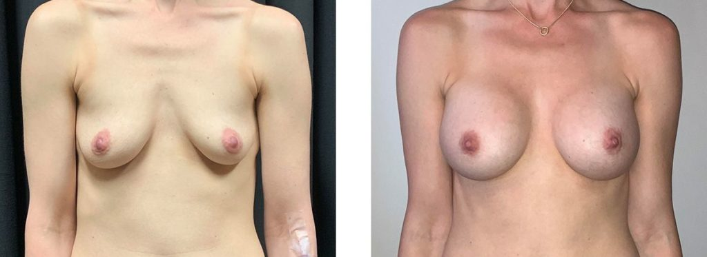 Cosmetic Surgery Tulsa | Breast Augmentation - Patient 4 - Front