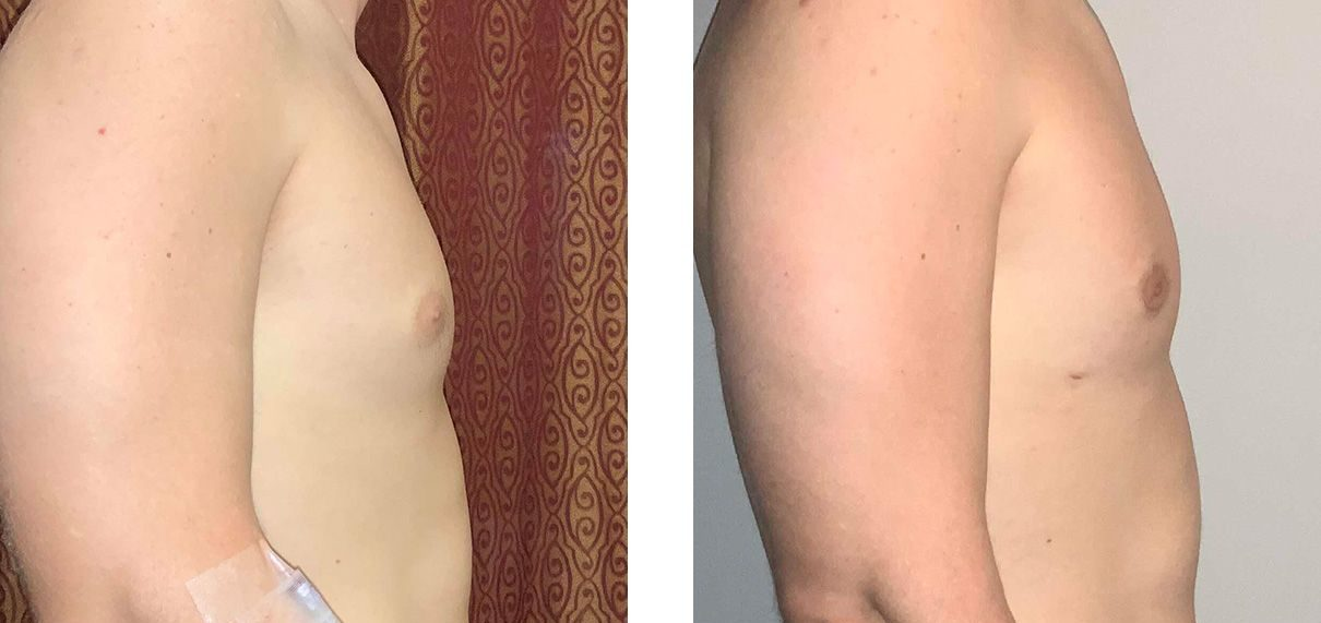 Cosmetic Surgery Tulsa | Gynecomastia - Patient 4 - Side 1