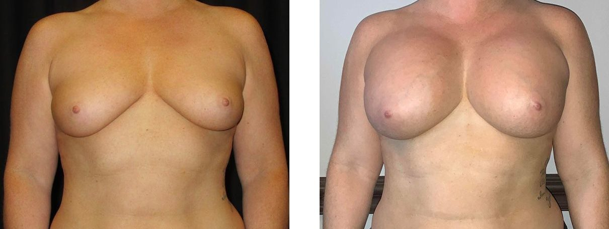 Cosmetic Surgery Tulsa | Breast Augmentation - Patient 5 - Front