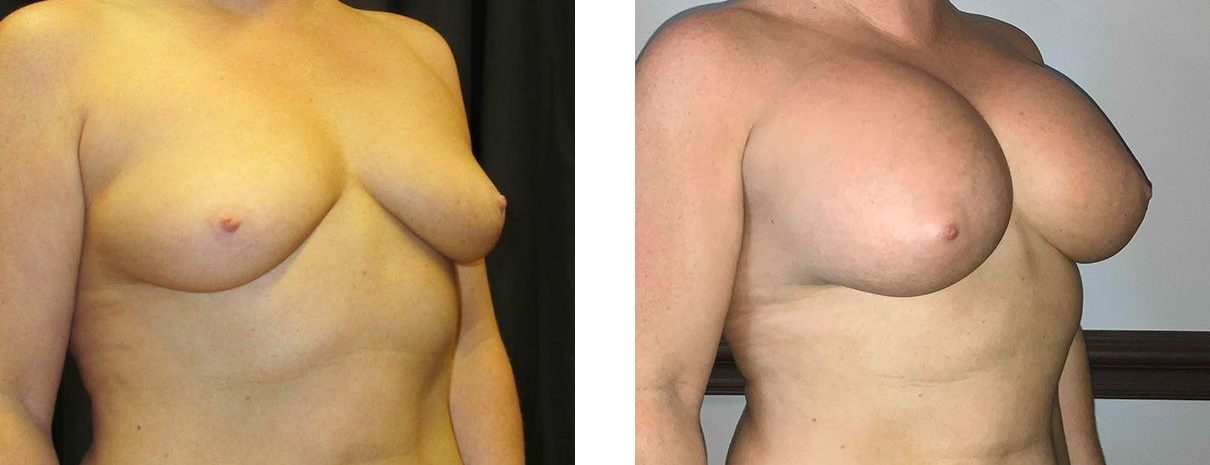 Cosmetic Surgery Tulsa | Breast Augmentation - Patient 5 - Oblique 1
