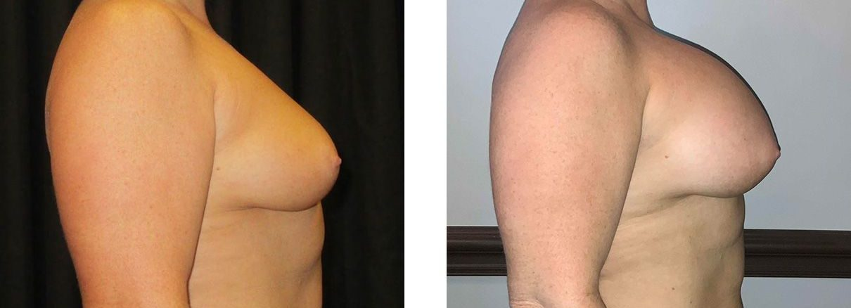 Cosmetic Surgery Tulsa | Breast Augmentation - Patient 5 - Side 1