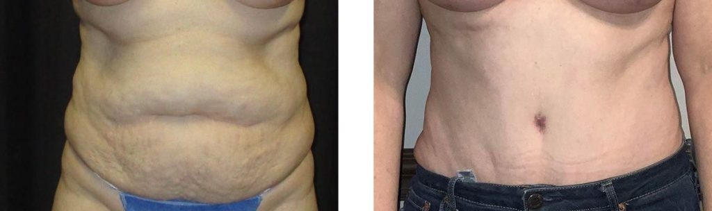 Cosmetic Surgery Tulsa | Tummy Tuck - Patient 3 - Front