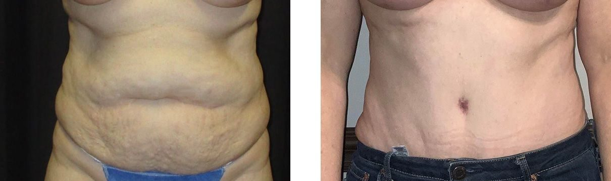 Cosmetic Surgery Tulsa   Tummy Tuck - Patient 3 - Front