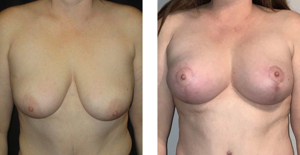 Cosmetic Surgery Tulsa | Breast Lift - Patient 11 - Front