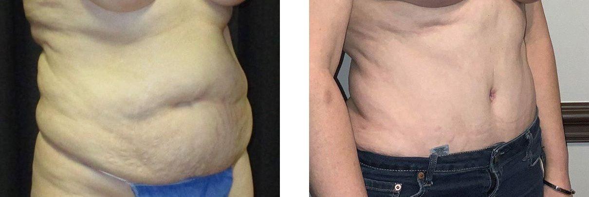 Cosmetic Surgery Tulsa   Tummy Tuck - Patient 3 - Oblique 1