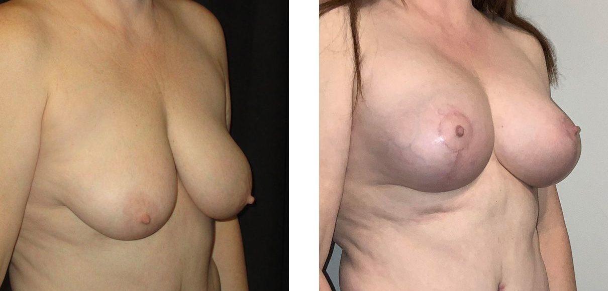Cosmetic Surgery Tulsa | Breast Lift - Patient 11 - Oblique 1