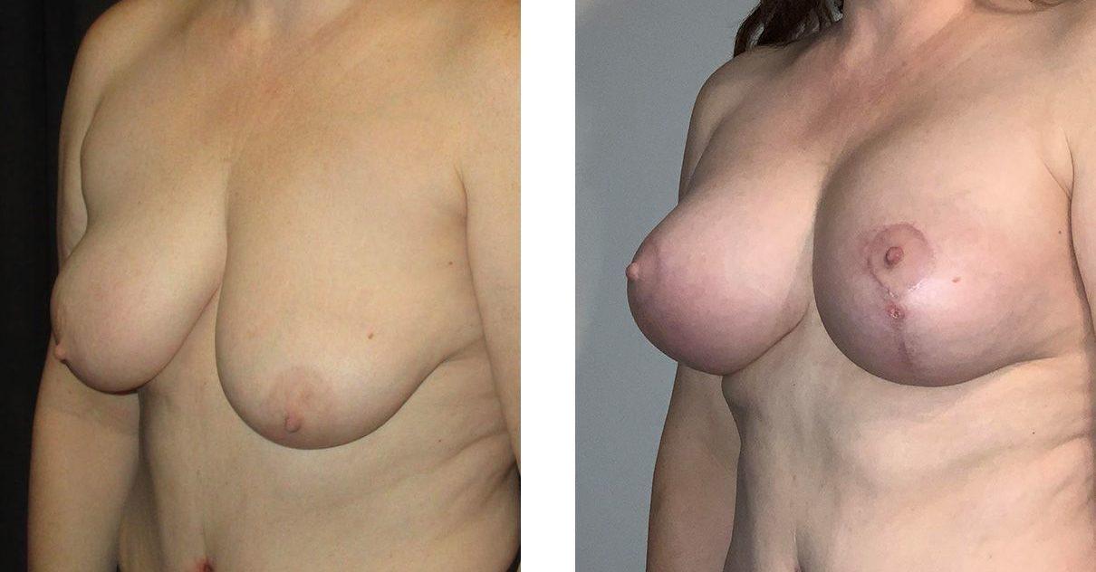 Cosmetic Surgery Tulsa | Breast Lift - Patient 11 - Oblique 2