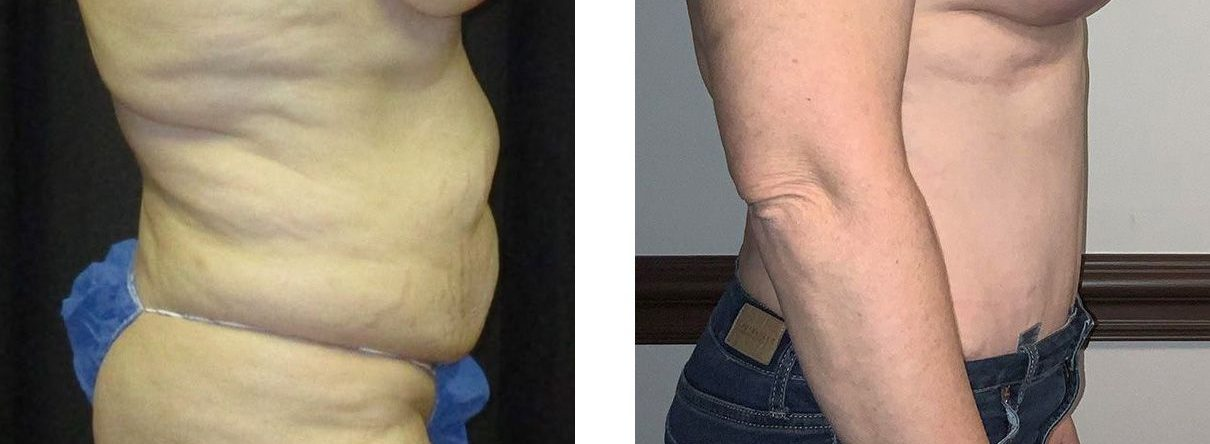 Cosmetic Surgery Tulsa   Tummy Tuck - Patient 3 - Side 1
