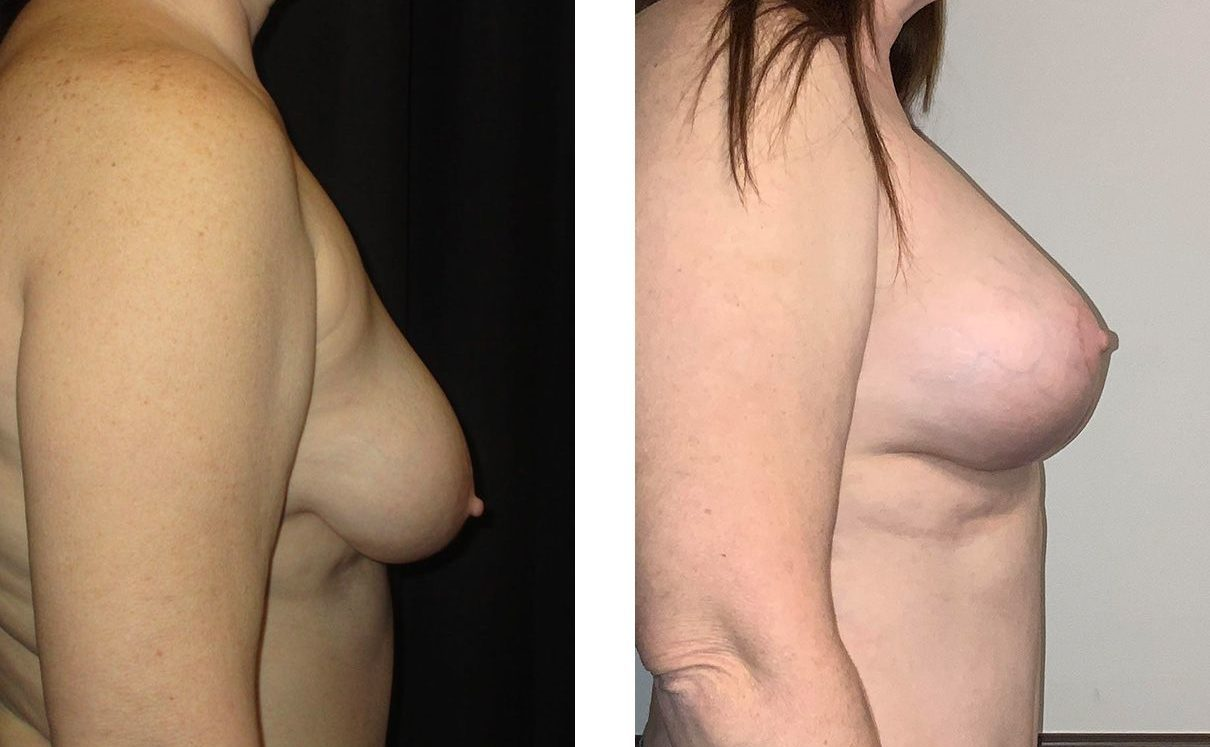 Cosmetic Surgery Tulsa | Breast Lift - Patient 11 - Side 1