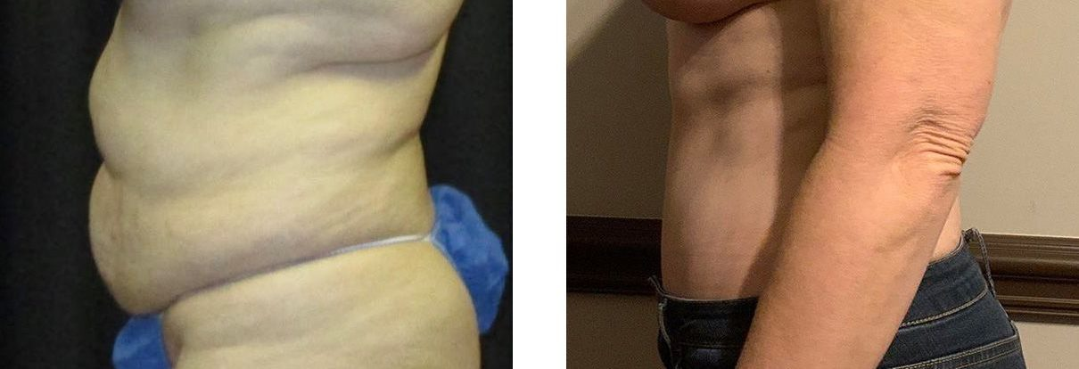 Cosmetic Surgery Tulsa   Tummy Tuck - Patient 3 - Side 2