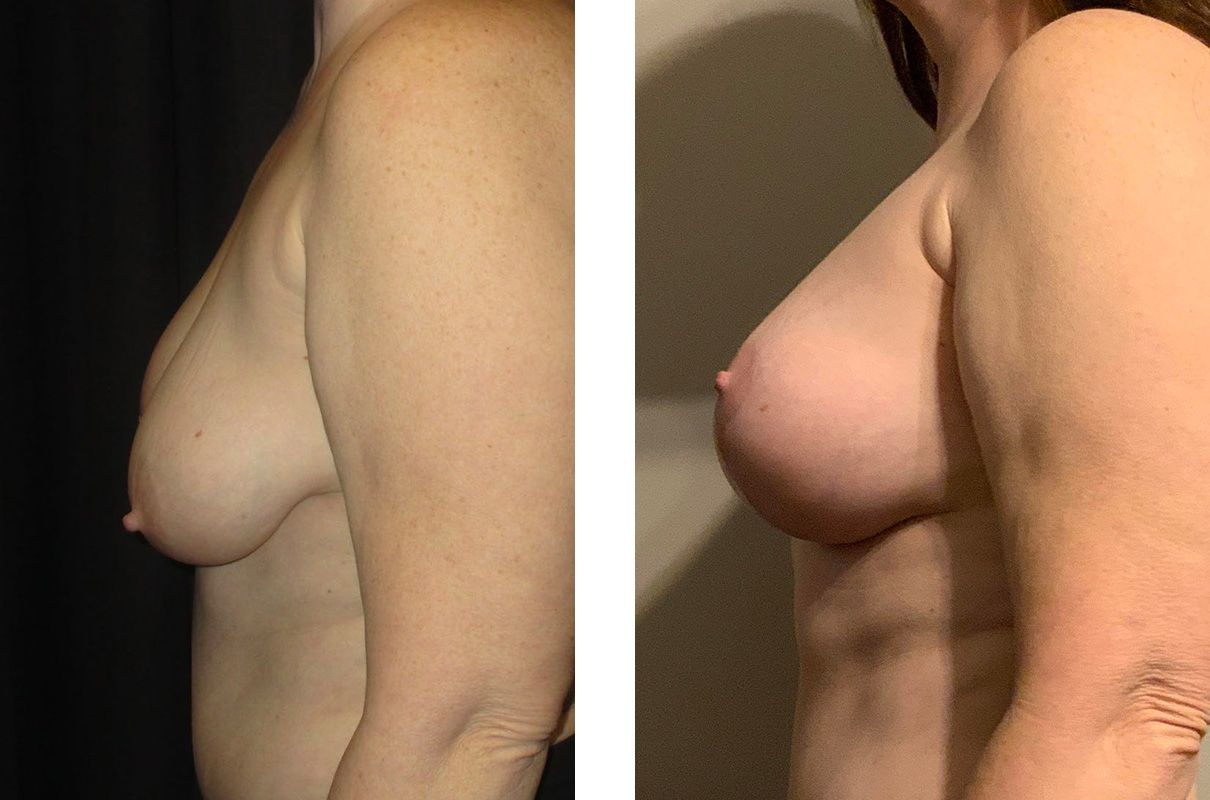 Cosmetic Surgery Tulsa | Breast Lift - Patient 11 - Side 2