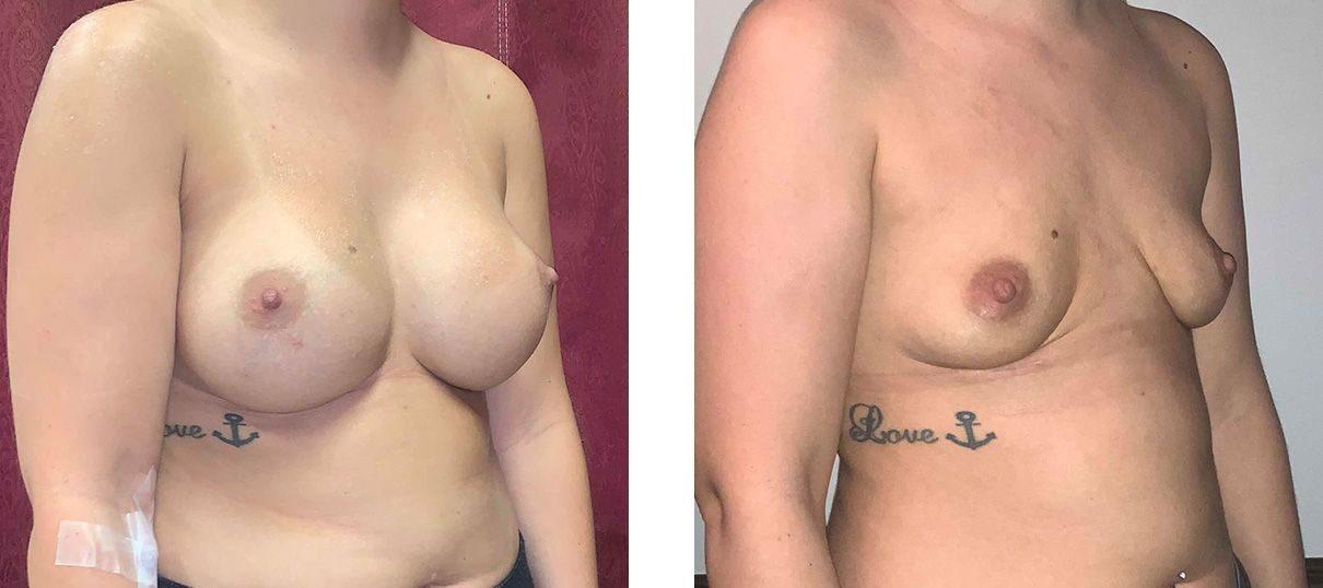 Cosmetic Surgery Tulsa | Explant - Patient 1 - Oblique 1
